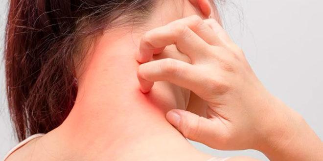 Лечение дерматитов